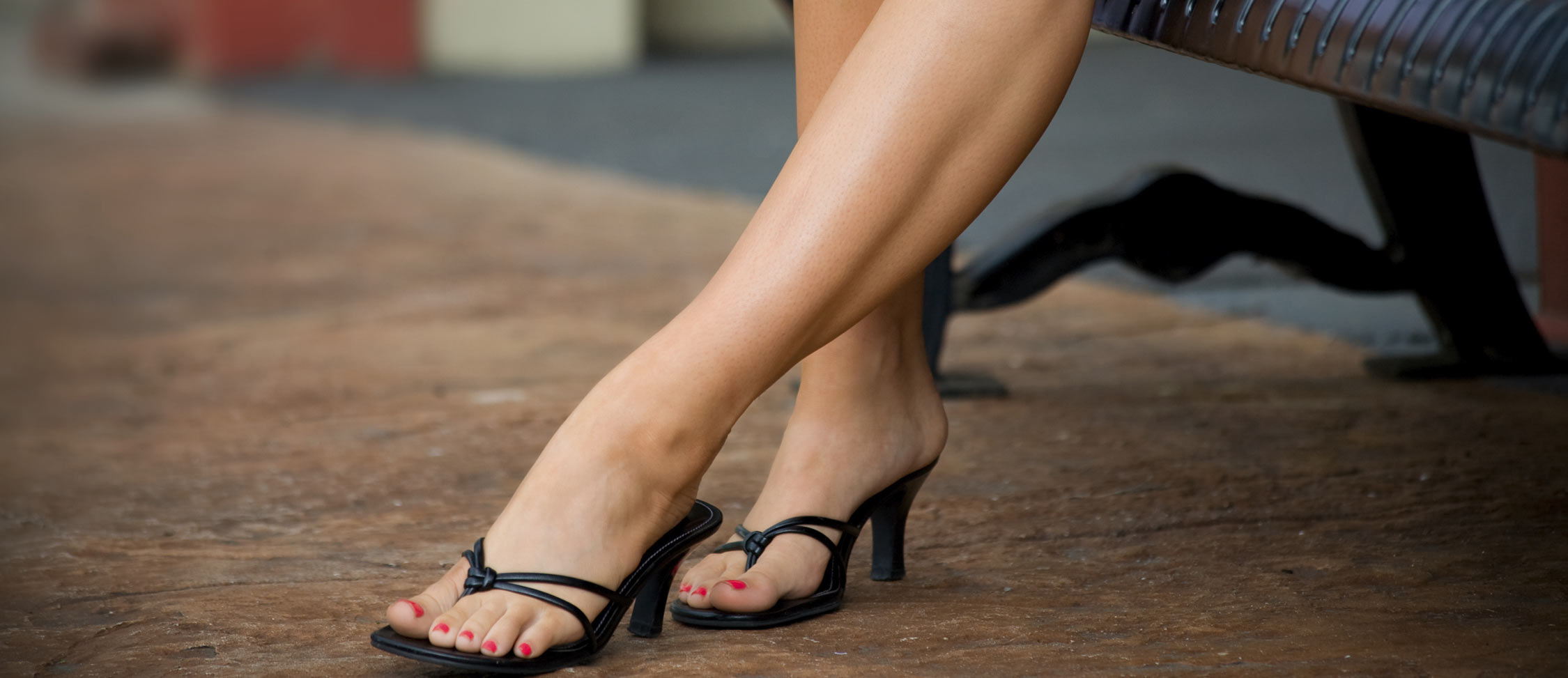 St. Louis Vein Experts - Foam Sclerotherapy