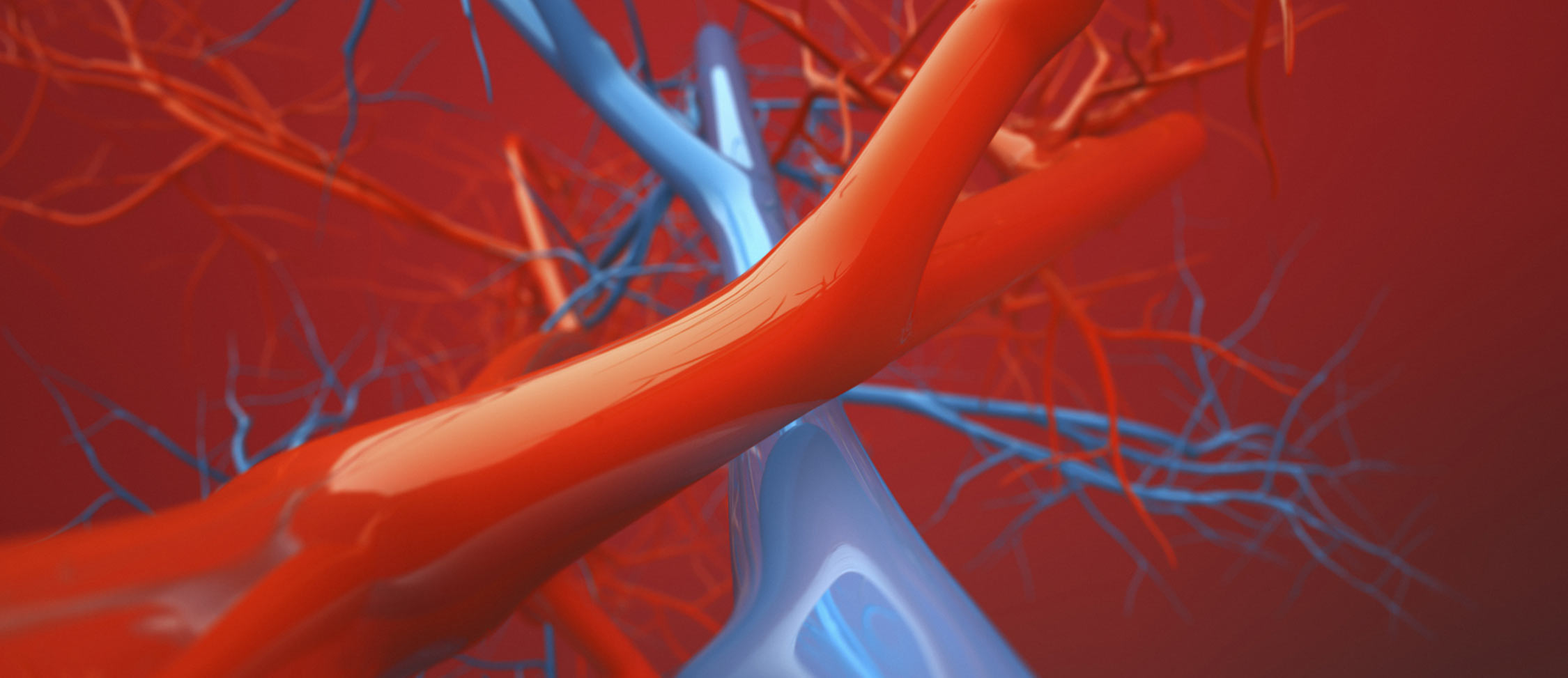 St. Louis Vein Experts - May-Thurner Syndrome
