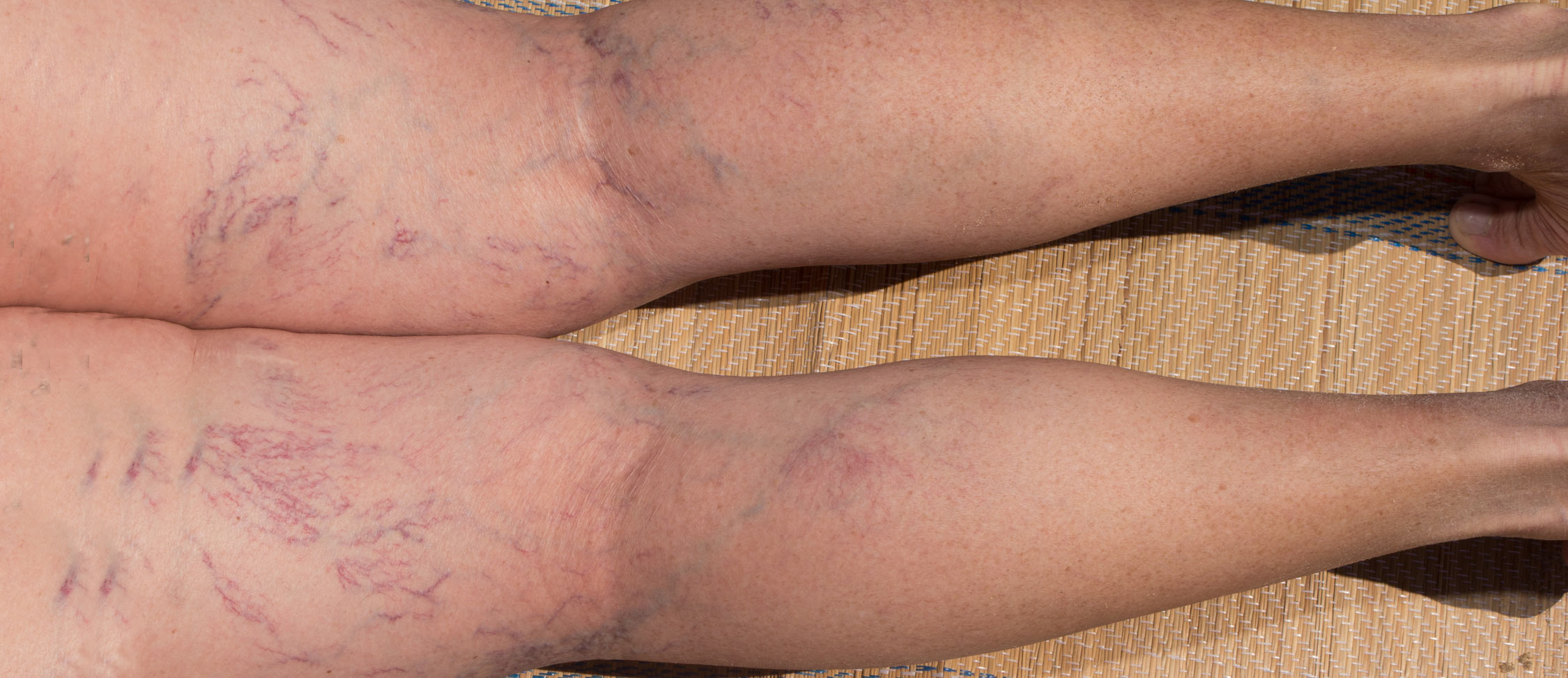 Spider Veins - Our Clinic